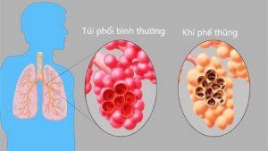Phân biệt khí phế thũng và COPD (Bệnh phổi tắc nghẽn mãn tính)