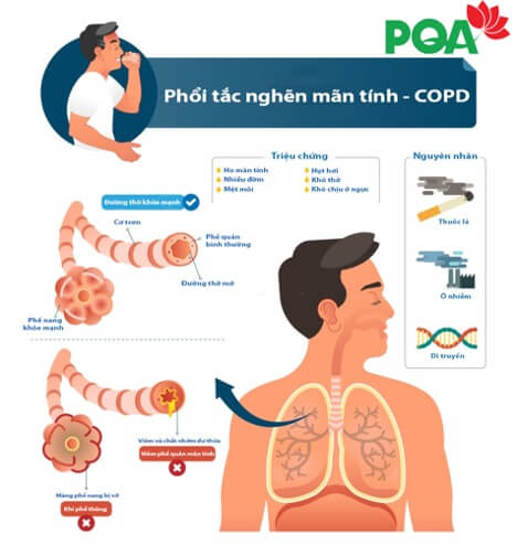 Sự mật thiết của Suy dinh dưỡng và Bệnh phổi tắc nghẽn mãn tính