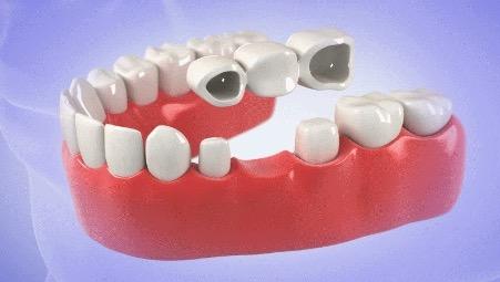 Mô phỏng hình ảnh cầu răng sứ