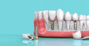 Trồng răng Implant là phát minh vĩ đại trong ngành nha khoa